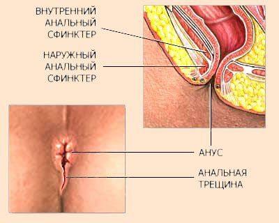 Аналный секс болезни