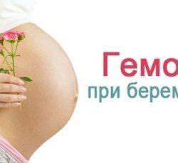 Геморрой - симптомы, причины, последствия. Лечение ...