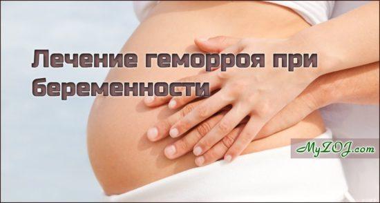 Можно ли геморрой лечить при беременности
