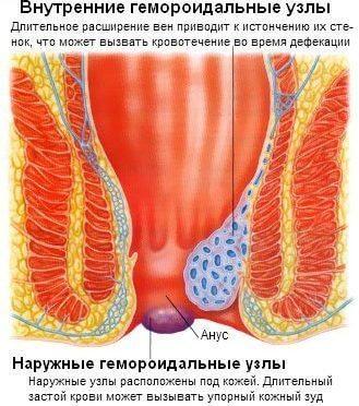 Комплексный подход к устранению геморроидальных шишек