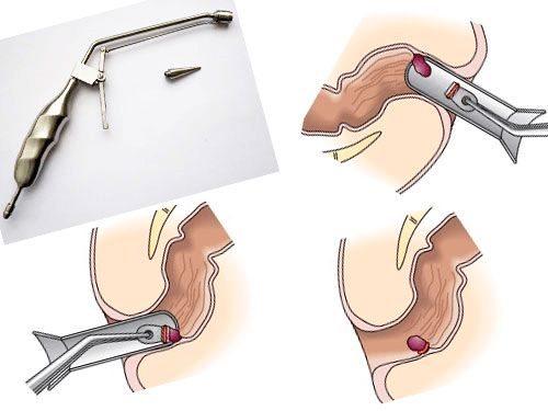 Геморроидэктомия ход и отзывы об операции по удалению