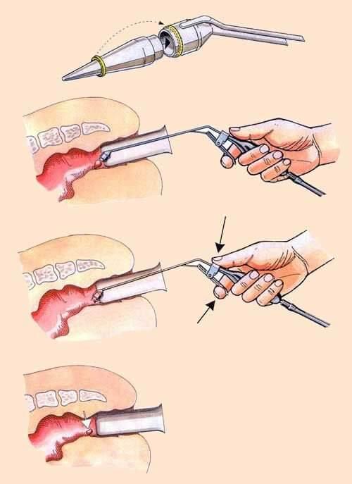 fotokoagulyatsiya-operatsii-po-analnoy