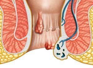 Симптомы появления шишки в заднем проходе