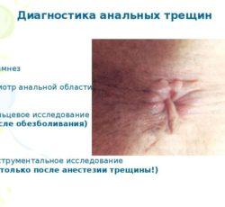 Диагностика анальных трещин