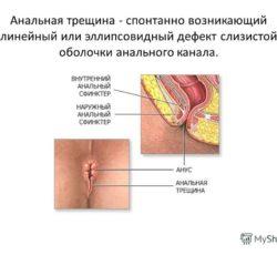 Что такое анальная трещина