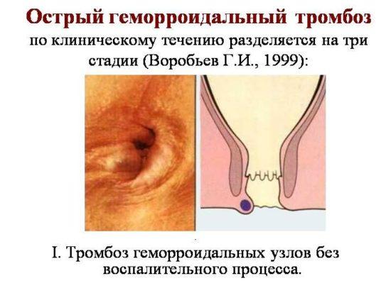 Стадии геморроидального тромбоза