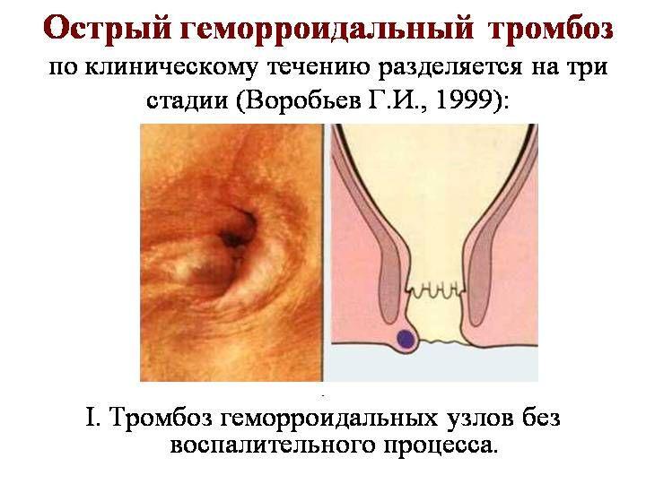 Течение Геморроя