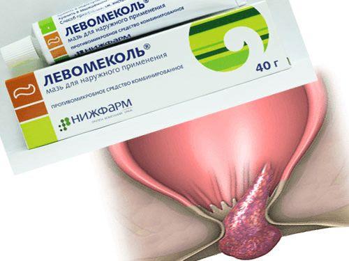 Левомеколь при геморрое при беременности