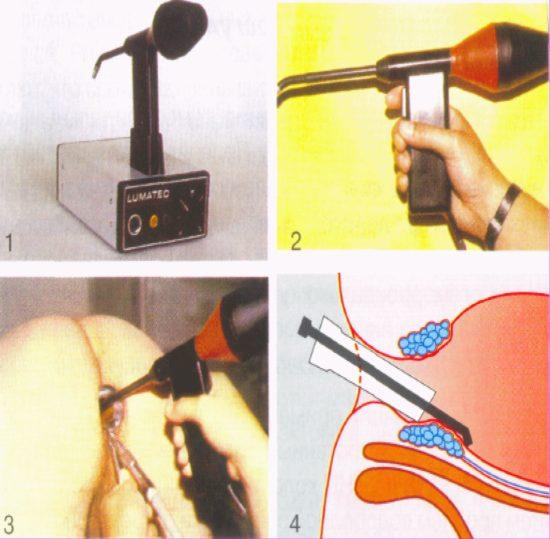Процесс проведения процедуры
