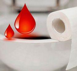 Кровь на туалетной бумаге свечи 248