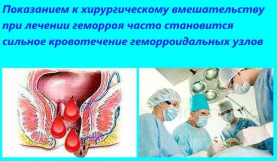 Операционные методы лечения