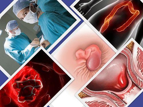 Показания для проведения тромбэктомии геморроидального узла