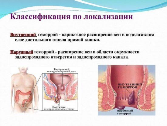 Классификация геморроидальных узлов