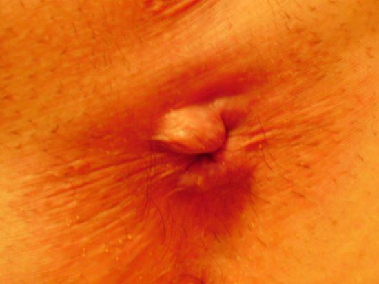 Геморроидальный узел воспалился