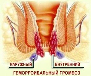 Классификация тромбоза