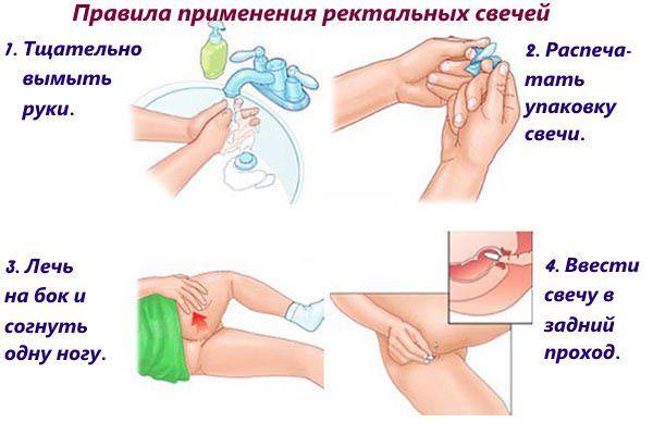 Лекарства от анальной трещины для кормящих мам