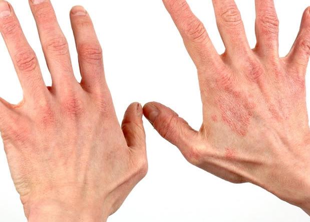 Возможно появление на коже сыпи, крапивницы, возникновение контактного дерматита.