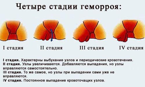 Часто из-за психологического дискомфорта пациент обращается к врачу поздно, патологию диагностируют на 3-4 стадии заболевания