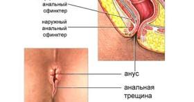 Хроническая анальная трещина — симптомы и особенности лечения
