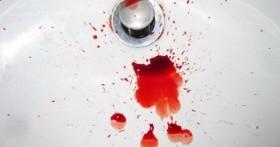 Кровотечение при геморрое — причины, симптомы и основы лечения