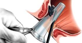 Лазерный метод удаления геморроидальных узлов