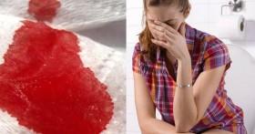 Причины выделения крови из заднего прохода при беременности