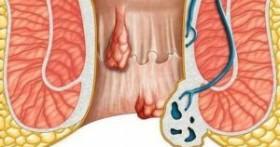 Геморрой не проходит — что предпринять и как правильно лечить патологию