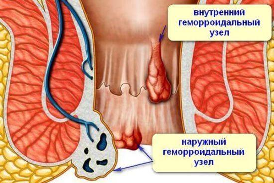 Лечение геморроя после анального секса