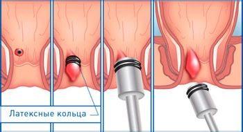Стоимость лечения геморроя латексными кольцами