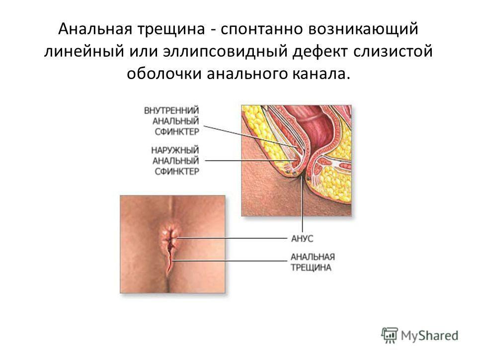 Препараты от внутреннего кровоточащего геморроя