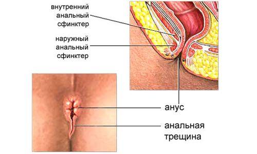 Анальная трещина Причины анальных трещин симптомы и лечение