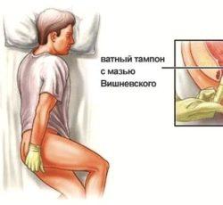 Лечение суставов мазью вишневского мази для лечения артроза коленного сустава цены