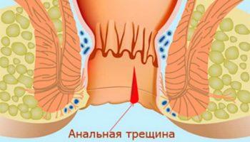Острая анальная трещина: причины, симптомы и лечение