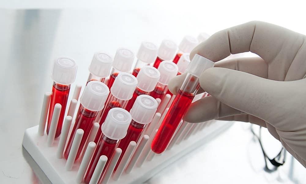 Для выявления геморроя врачи-проктологи применяют общий анализ крови