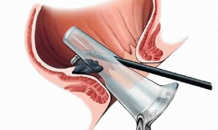 Аноскопия позволяет исследовать состояние слизистой оболочки прямой кишки, выявляет геморрой на ранних стадиях