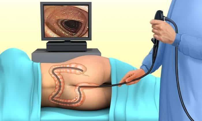 Колоноскопия дает возможность провести осмотр внутренней поверхности толстой кишки с использованием эндоскопа
