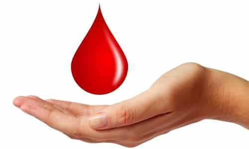 Ректальные кровотечения при внутреннем геморрое сопровождают каждый акт дефекации