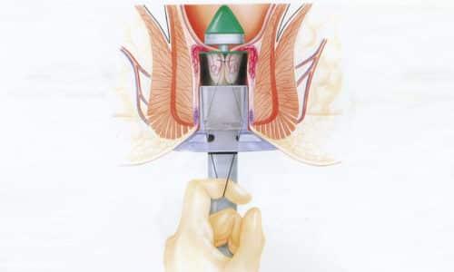 Практикуют такой метод лечения геморроидопексия по Лонго