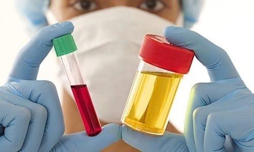 Лабораторные анализы при геморрое являются важнейшей части диагностики