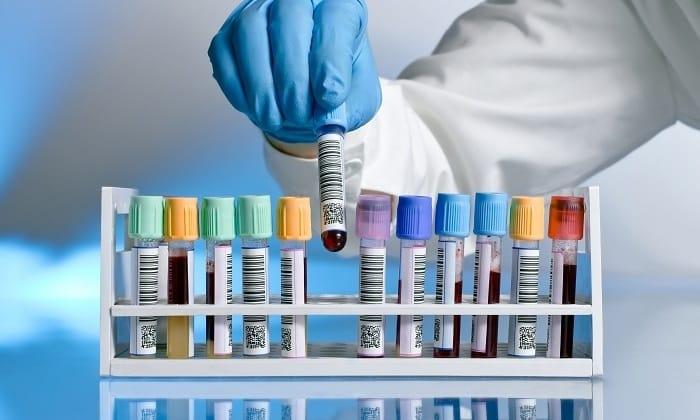Коагулограмма определяет концентрацию гемоглобина в крови