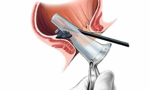 Расширение анального канала, введение аноскопа, обработанного глицерином