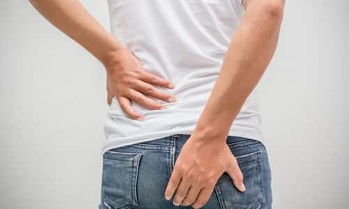 Геморрой у подростков представляет собой расширение вен заднего прохода, при котором наблюдается увеличение и воспаление геморроидальных узлов