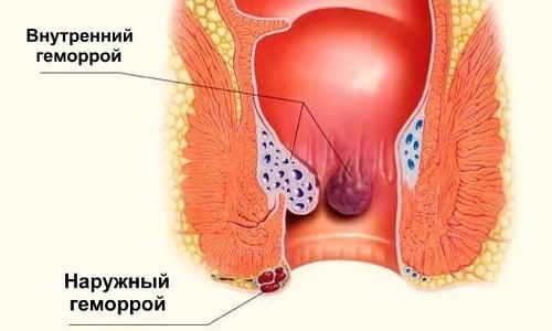 Геморрой — фактор риска при развитии рака кишечника. Чтобы избежать возникновения болезни, необходимо заниматься ее профилактикой
