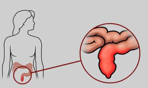 Несоблюдение правил гигиены приводит к воспалению в области анального канала