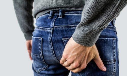 Геморрой - хроническое заболевание, характеризующееся расширением и воспалением вен прямой кишки