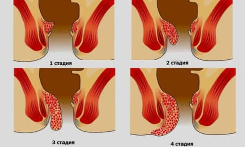 В зависимости от тяжести заболевания врачи выделяют 4 стадии геморроя
