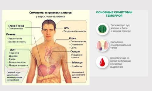 Гельминтоз и геморрой могут вызывать одинаковые симптомы. В связи с этим люди не всегда понимают, что происходит с их кишечником