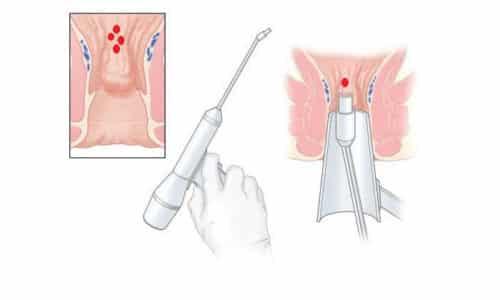 Эта процедура наименее безболезненная, требует нескольких подходов. За один сеанс нельзя обрабатывать больше одного узлового сплетения