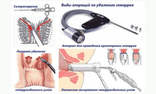 Малоинвазивное лечение геморроя - это промежуточный метод между консервативным (лекарственным) и хирургическим методом