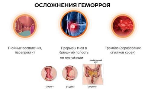 Запущенная болезнь чревата многими осложнениями: от сильных кровотечений до рака толстой кишки